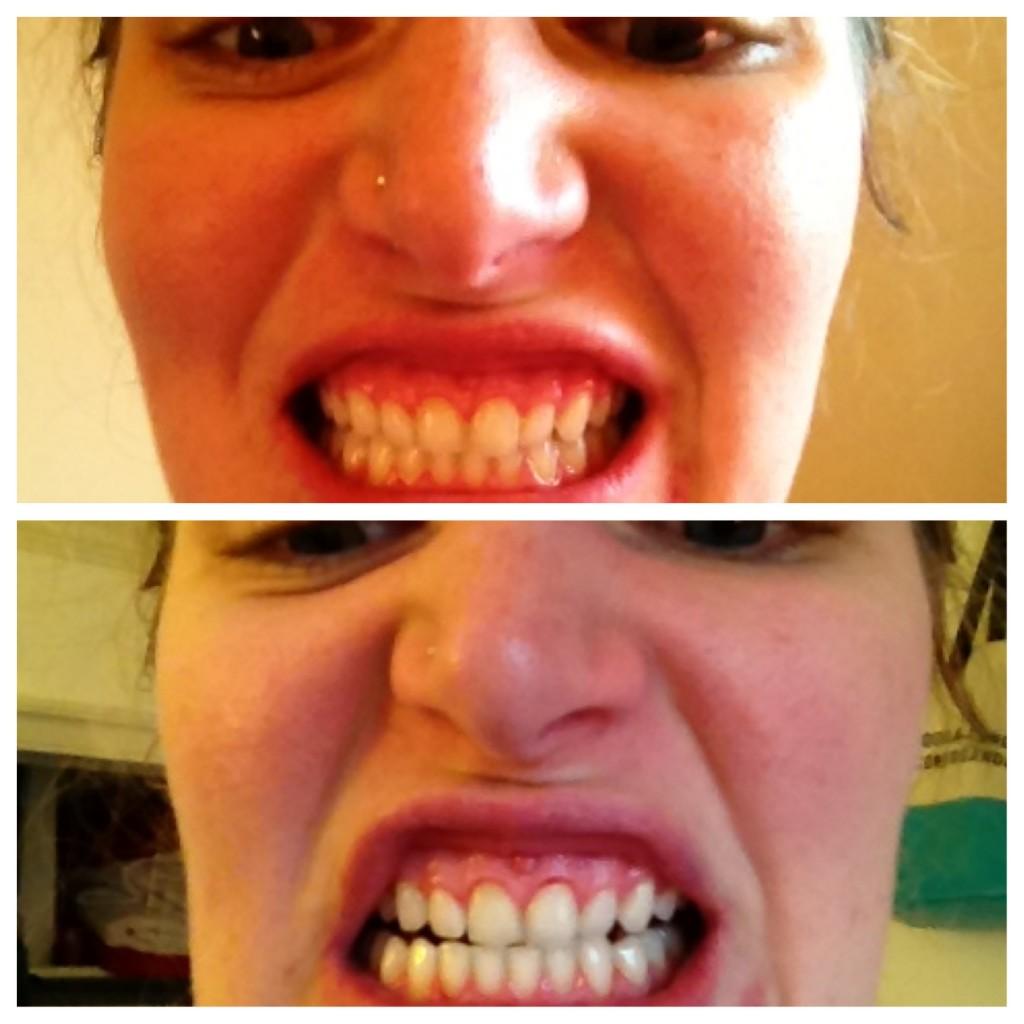 luster now teeth